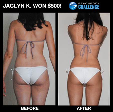 Jaclyn K Butt Lift Before and After